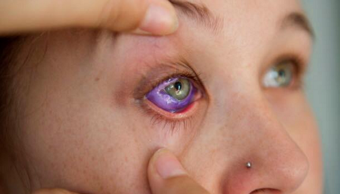 A lady's eye has been tattooed purple