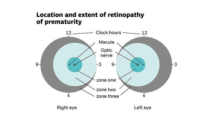 Diagram of eyes showing location and extent of retinopathy of prematurity