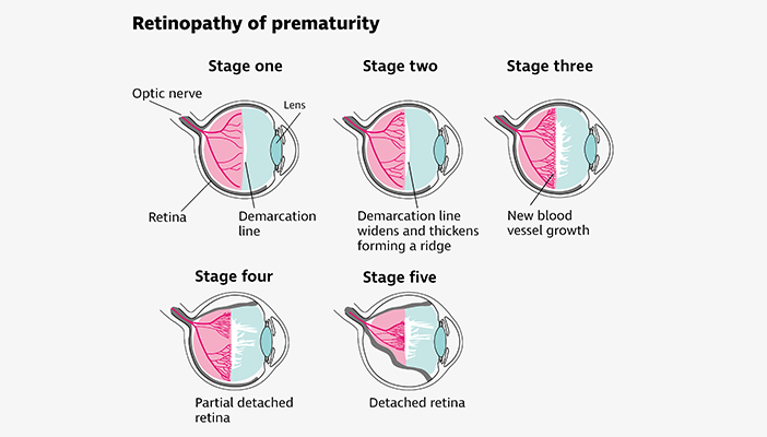 Illustration of the five stages of retinopathy of prematurity